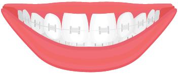 Tooth-Colored or Ceramic Braces
