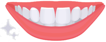 Clear Removable Aligners